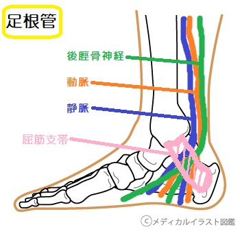 足根管症候群。足の裏側の痺れや痛み。