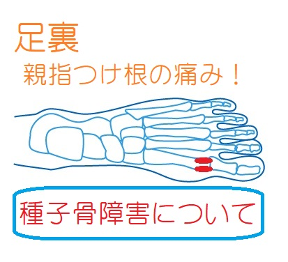 足裏親指側(母趾球)の痛みがなかなかとれない!母趾「種子骨障害」を解説。