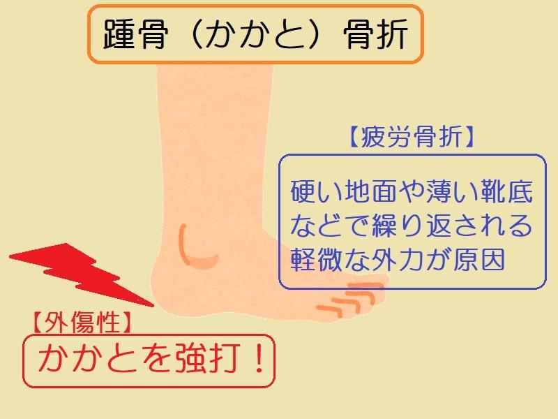 「踵骨骨折」ってどんなときに起こる?疲労骨折にも注意!