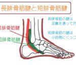 【外くるぶし】の下や後ろの痛み。「腓骨筋腱炎」は足の着き方が原因!