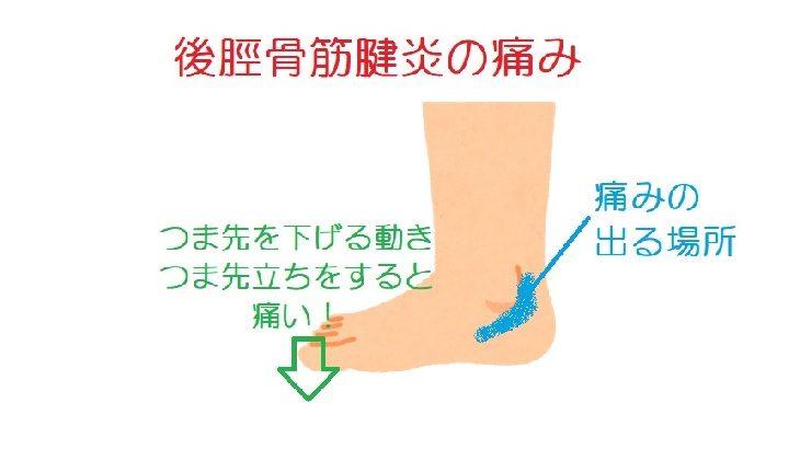後脛骨筋腱の痛み